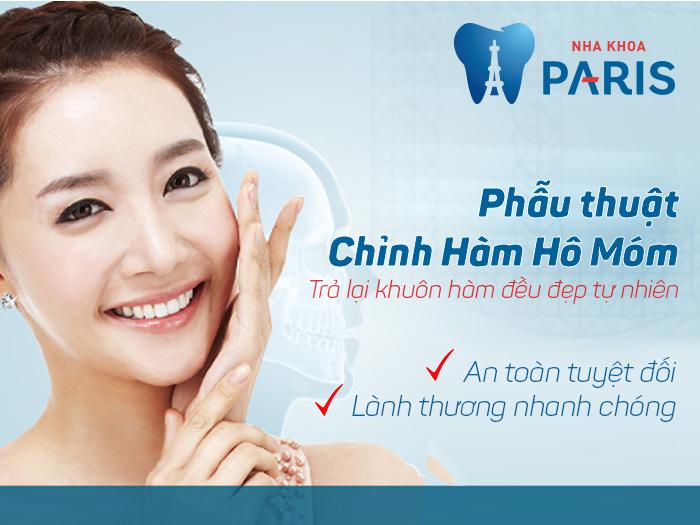 Phẫu thuật hàm móm 3D BSSO - Hàm răng đẹp tự tin trong cuộc sống