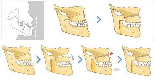 Phẫu thuật hàm móm 3D BSSO cam kết an toàn hiệu quả nhanh chóng 3