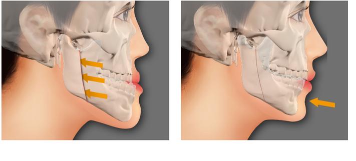 Giá chỉnh răng hàm móm vô cùng ưu đãi tại nha khoa Paris