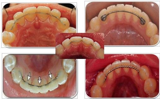 Niềng răng ở đâu tốt, AN TOÀN,UY TÍN và chất lượng nhất 2016 2