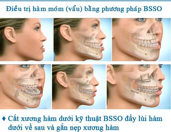 Phẫu thuật hàm móm 3D BSSO cam kết an toàn hiệu quả nhanh chóng 2