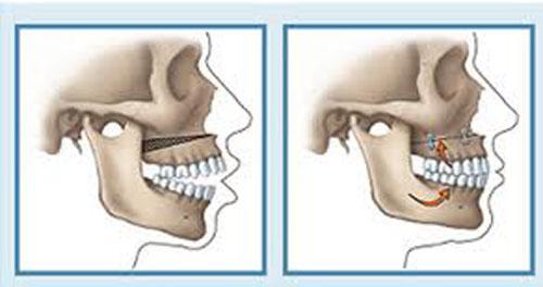 Quy trình cắt xương hàm hô đảm bảo AN TOÀN tại nha khoa Paris 2