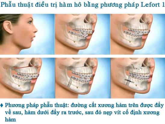 Phương pháp phẫu thuật: cắt xương hàm hô
