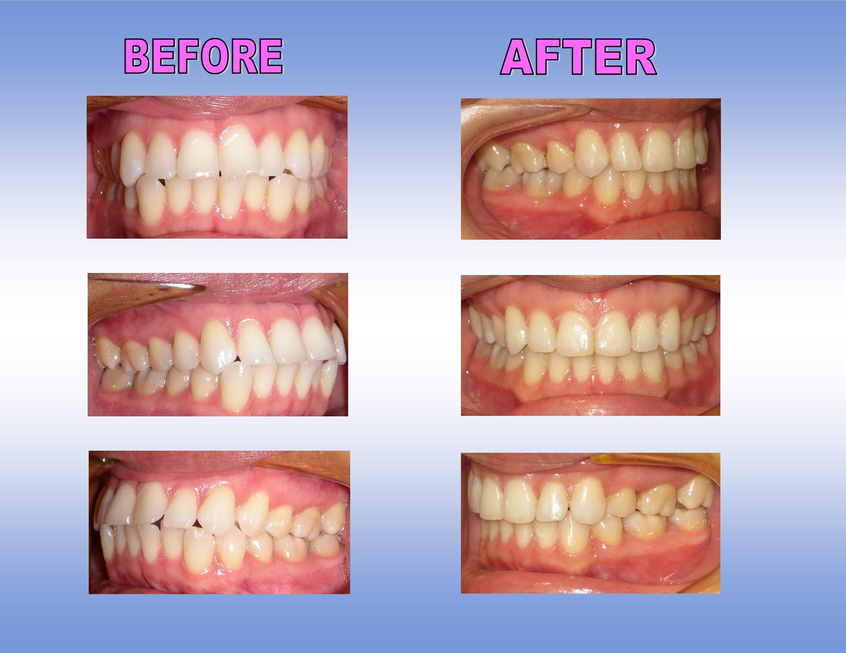 Niềng răng - P/pháp chữa răng cửa to và hô NHANH nhất 3