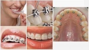 Quy trình niềng răng chuẩn đạt kết quả tốt nhất qua từng giai đoạn 1