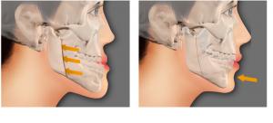 Niềng răng- Giải pháp chỉnh răng móm cực kì An Toàn và hiệu quả 1