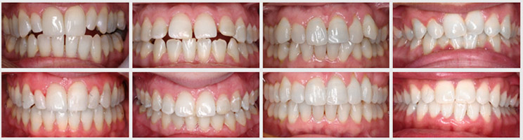 Chỉnh răng thưa mất bao nhiêu tiền – Bảng giá MỚI năm 2016
