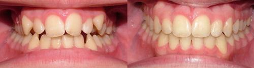 Bảng giá nẹp răng mới nhất tại Nha khoa Paris
