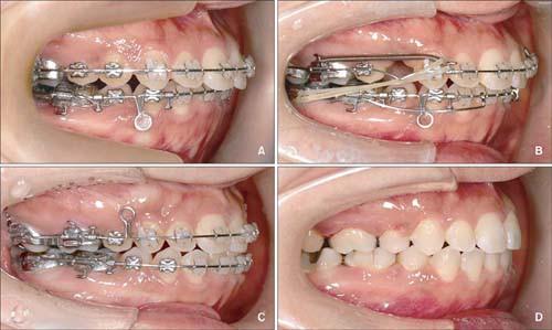 Niềng răng có đau không? – Giải pháp niềng răng KHÔNG ĐAU