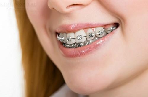 Kinh nghiệm niềng răng cho những người mới bắt đầu