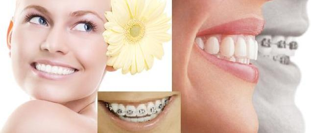 Làm thế nào để có một hàm răng đẹp như ý