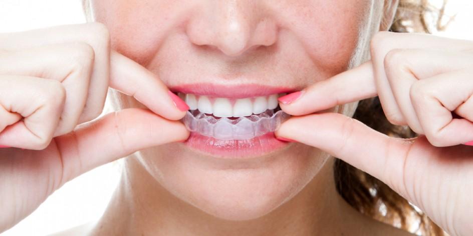 Chỉnh nha không nhổ răng cho hàm răng đẹp hoàn hảo! 2