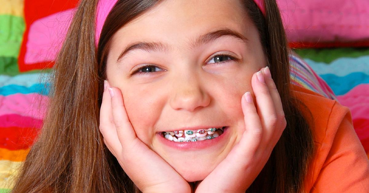 Niềng răng trẻ em và 5 vấn đề cha mẹ thường gặp cần LƯU Ý 1