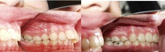 Niềng răng - P/pháp chỉnh răng hô nhẹ AN TOÀN và hiệu quả 1