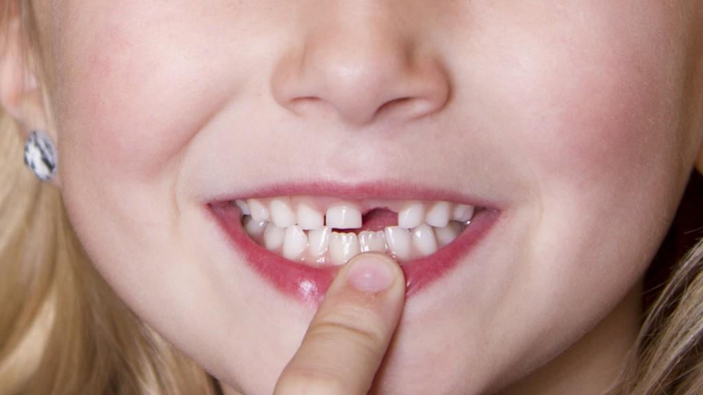 Giải pháp điều trị răng mọc lệch ở trẻ em mà các cha mẹ nên biết