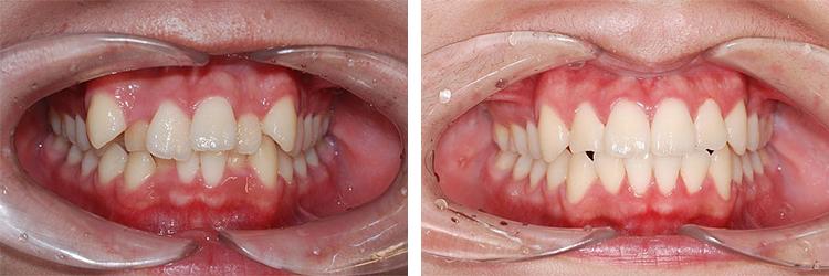 """Giải đáp của bác sĩ """"niềng răng có hại cho sức khỏe không?"""""""