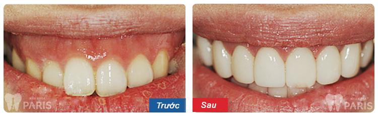 Phẫu thuật cười hở lợi - Giải pháp SỐ 1 cho nụ cười hoàn hảo 2