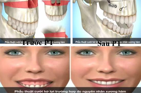 Phẫu thuật cười hở lợi - Giải pháp trả lại nụ cười hoàn hảo nhất 3