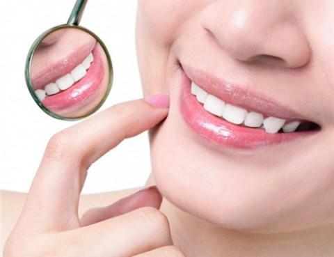 Cách sửa răng vẩu chỉ với thời gian ngắn nhất