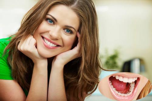 Niềng răng hô HIỆU QUẢ trọn đời với công nghệ cao 3M UGSL 1