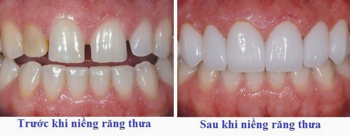 Răng thưa có nên niềng răng hay không?【Bác sĩ tư vấn】