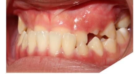 Trường hợp khớp cắn ngược do răng