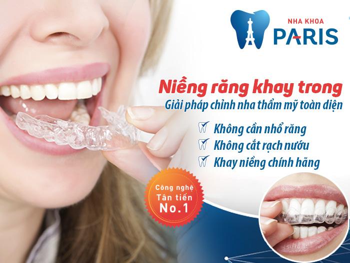 Niềng răng không mắc cài – phương pháp chỉnh nha hàng đầu trên thế giới