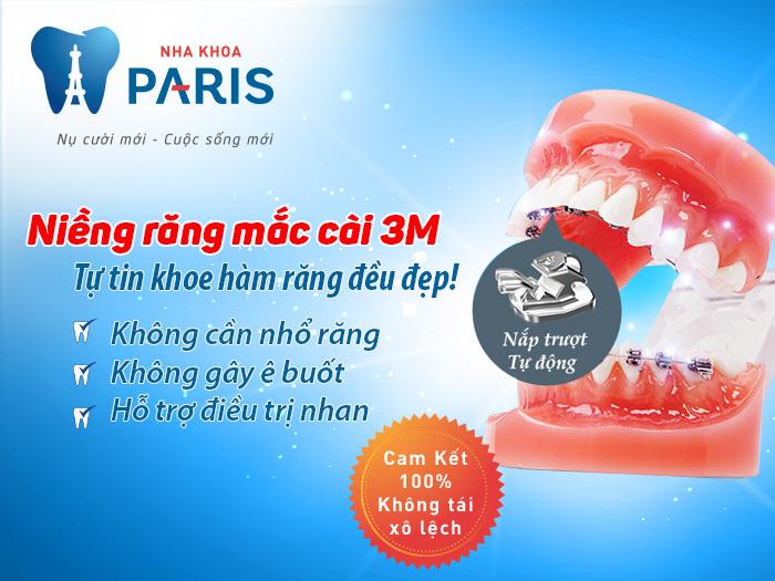 Niềng răng mắc cài 3M – Công nghệ chỉnh nha hàng đầuTG
