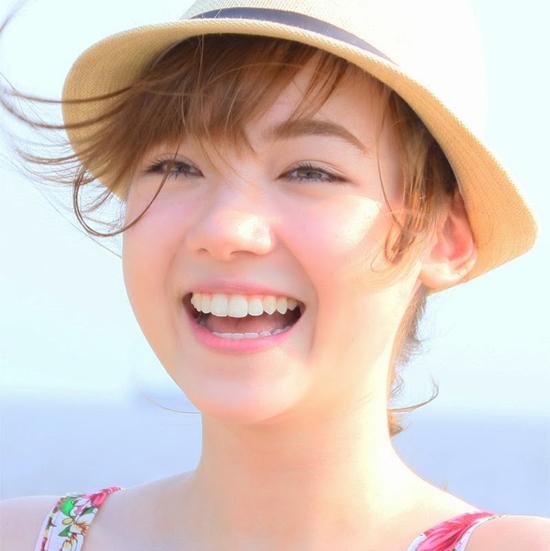 Nguyên nhân và cách khắc phục răng hô hiệu quả nhất 2017 1