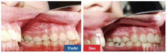 Niềng răng không mắc cài thẩm mỹ hơn, HOÀN HẢO hơn 5