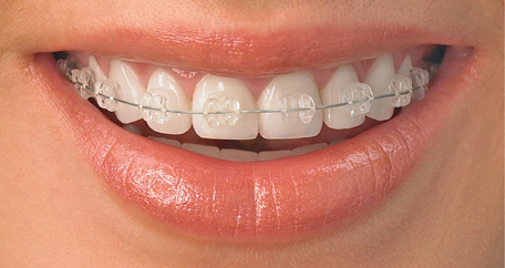 TOP 10 kinh nghiệm niềng răng cực kì hữu ích bạn NÊN BIẾT 1