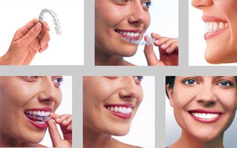 Niềng răng không mắc cài thẩm mỹ hơn, HOÀN HẢO hơn 3