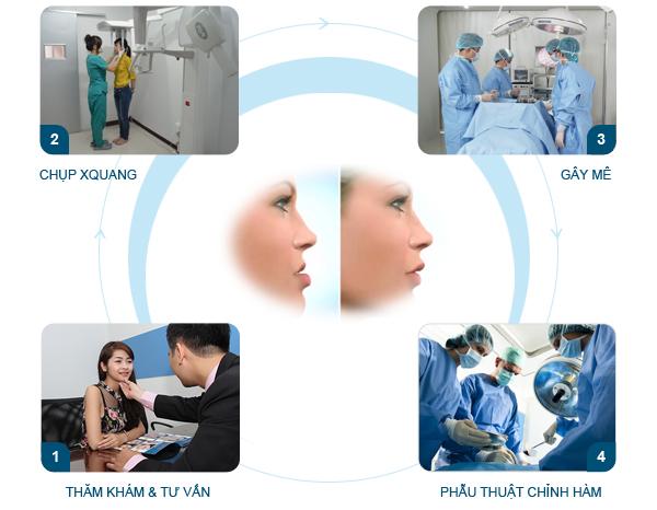 Phẫu thuật hàm móm 3D BSSO cam kết an toàn hiệu quả nhanh chóng 4