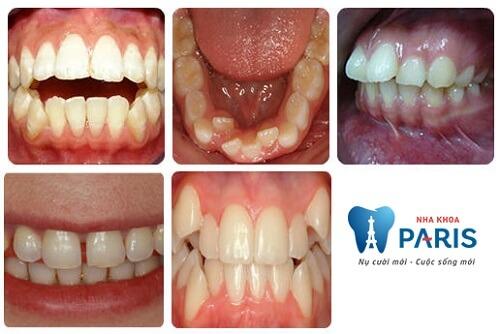 Niềng răng mắc cài 3M UGSL- chỉnh nha An Toàn, Hiệu Quả 2