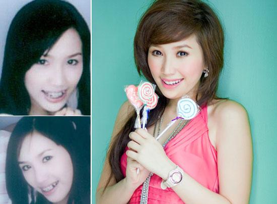 Những HÀM RĂNG ĐẸP của sao Việt sau niềng răng thẩm mỹ 7