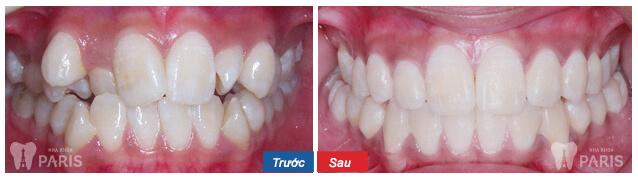 Niềng răng mắc cài 3M UGSL- chỉnh nha An Toàn, Hiệu Quả 9