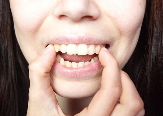 Nguyên nhân và cách chữa răng vẩu tại nhà hiệu quả nhất 2017 4