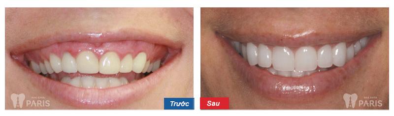 Chi phí phẫu thuật cười hở lợi giá bao nhiêu? Bảng giá ƯU ĐÃI 2