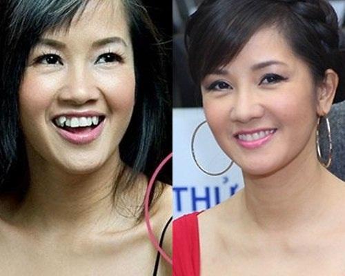Những HÀM RĂNG ĐẸP của sao Việt sau niềng răng thẩm mỹ 1