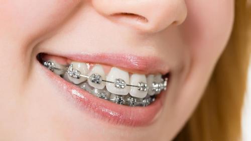 Răng hô nhẹ có nên đi niềng răng không?【Lời khuyên từ nha sĩ】 - Ảnh 1
