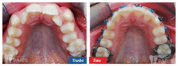 Niềng răng mắc cài 3M UGSL- chỉnh nha An Toàn, Hiệu Quả 10