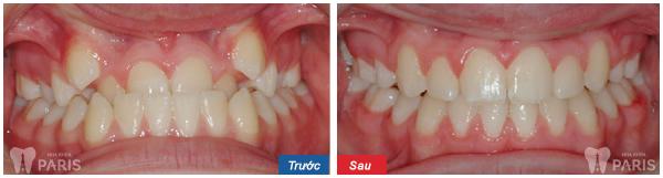 Cách xử lý răng mọc lệch mang lại hiệu quả cao nhất 2017 5