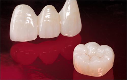 Cách xử lý răng mọc lệch mang lại hiệu quả cao nhất 2017 2