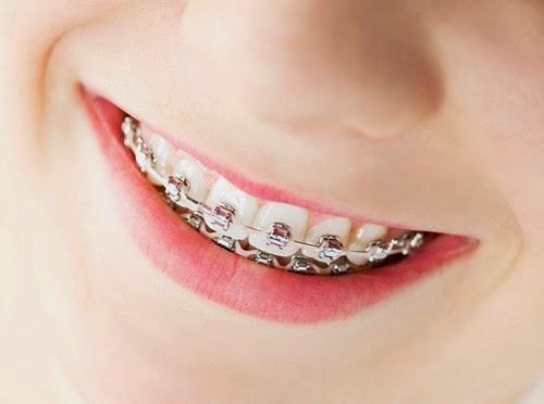 Niềng răng móm bao lâu là có được hàm răng ĐẸP ĐỀU như ý muốn? 1