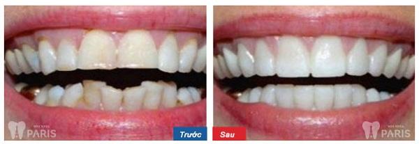 Ngỡ ngàng với hình ảnh trước và sau niềng răng tại Paris 10