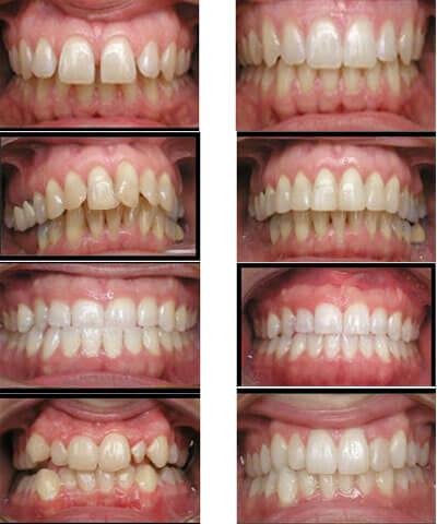 Ngỡ ngàng với hình ảnh trước và sau niềng răng tại Paris 12