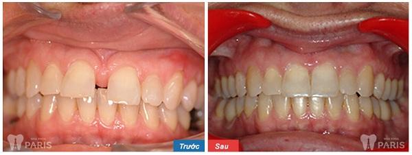 Ngỡ ngàng với hình ảnh trước và sau niềng răng tại Paris 4