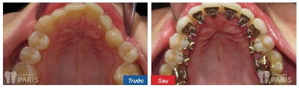 Ngỡ ngàng với hình ảnh trước và sau niềng răng tại Paris 6