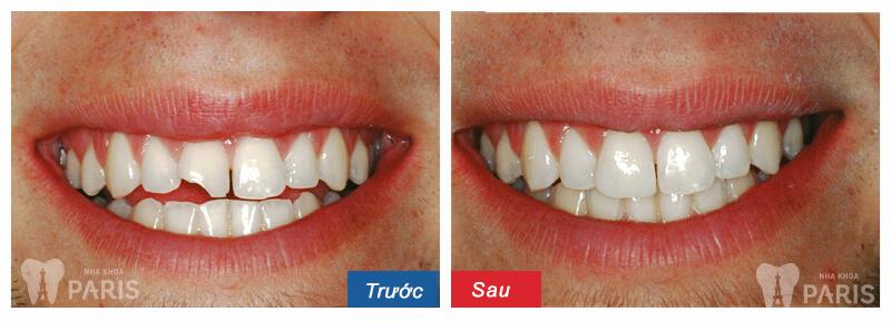 Bí quyết sở hữu hàm răng đẹp hoàn hảo như sao Hàn 4