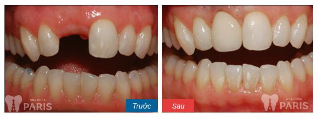 Bí quyết sở hữu hàm răng đẹp hoàn hảo như sao Hàn 9